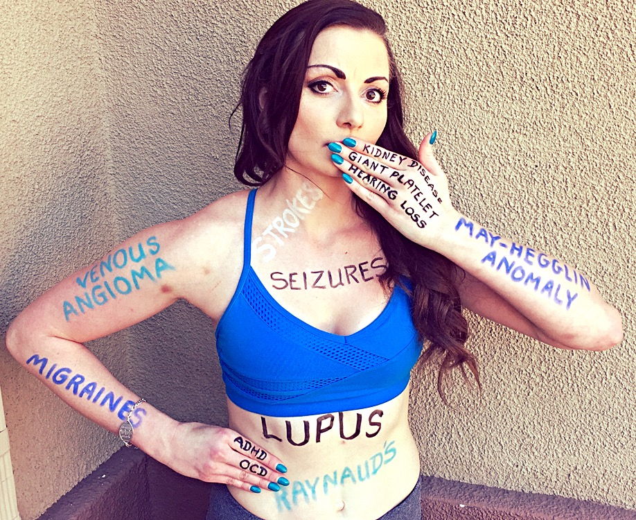 "Woman wearing blue top with the words ""seizures,"" ""lupus,"" ""migraines"" and more diagnoses written on her upper body"