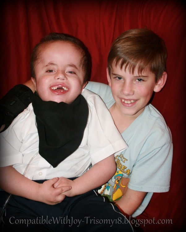 Rebekah's son with Trisomy 18 and his brother