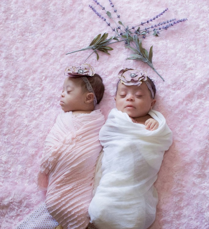 Photo of two baby twins with Down syndrome, laying on a soft pink blanket.