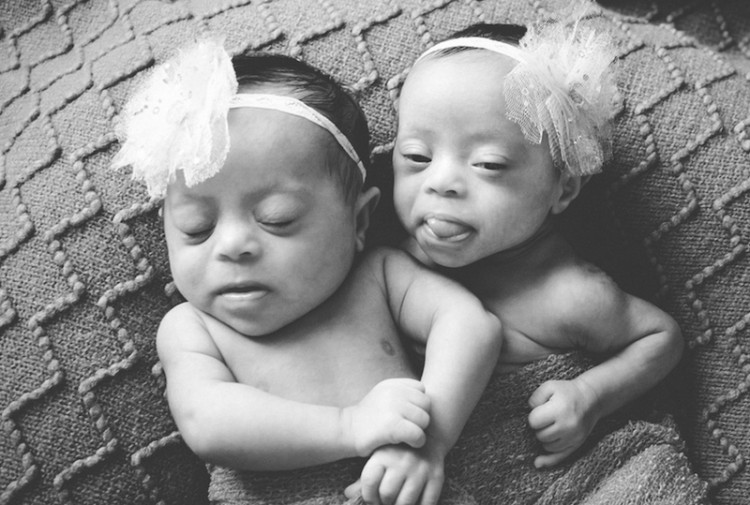 Twins with Down syndrome.