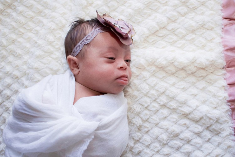 A baby with Down syndrome lays on a blanket.