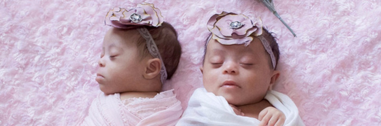 photo of twins with down syndrome