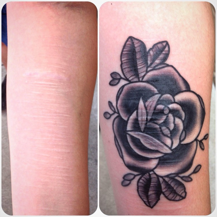 Maddie Keating's arms before and after her tattoo. On the left shows an arm with scars. On the right the scars are covered with a rose.