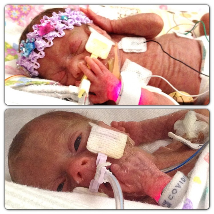 two newborn preemies in incubators