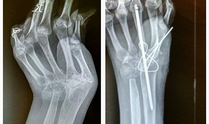 x ray of broken fingers