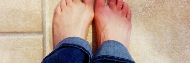 'sunburned feet' that are actually a flare up