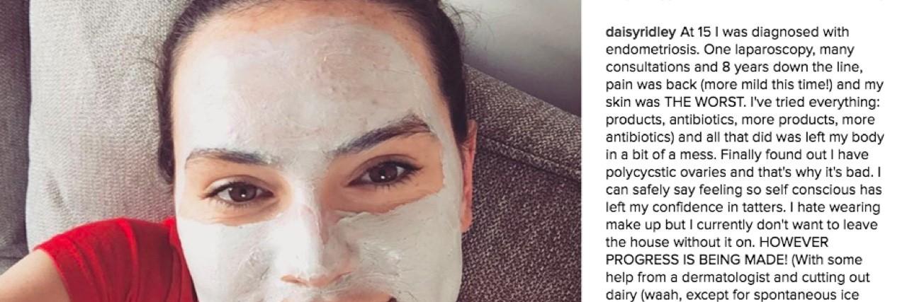 Daisy Ridley's Instagram Post