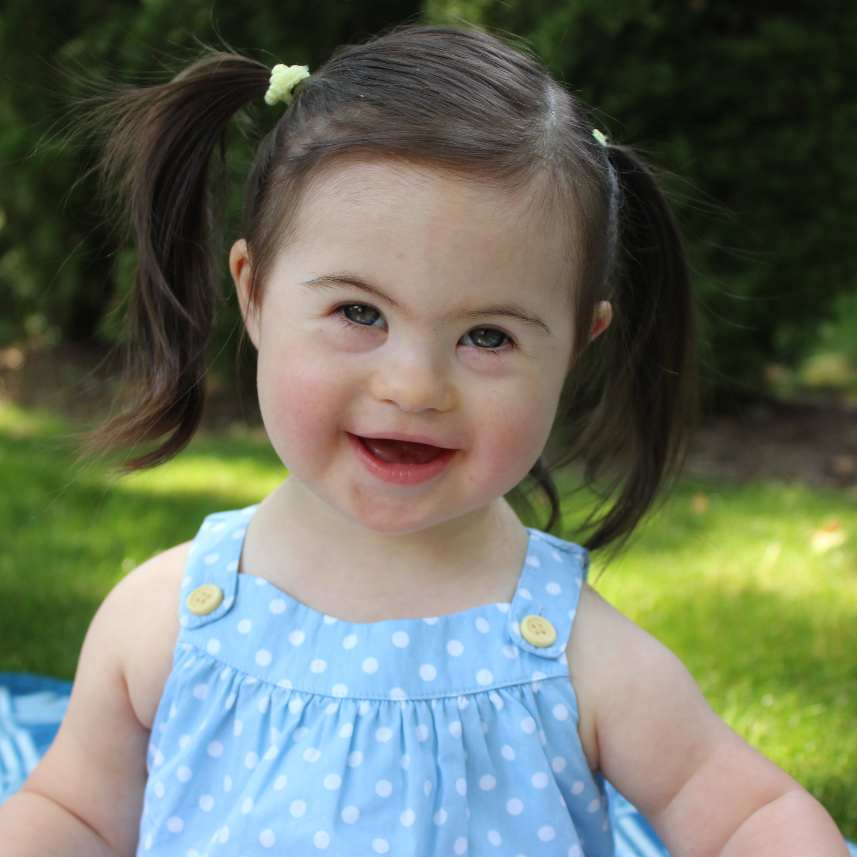 little girl with down syndrome