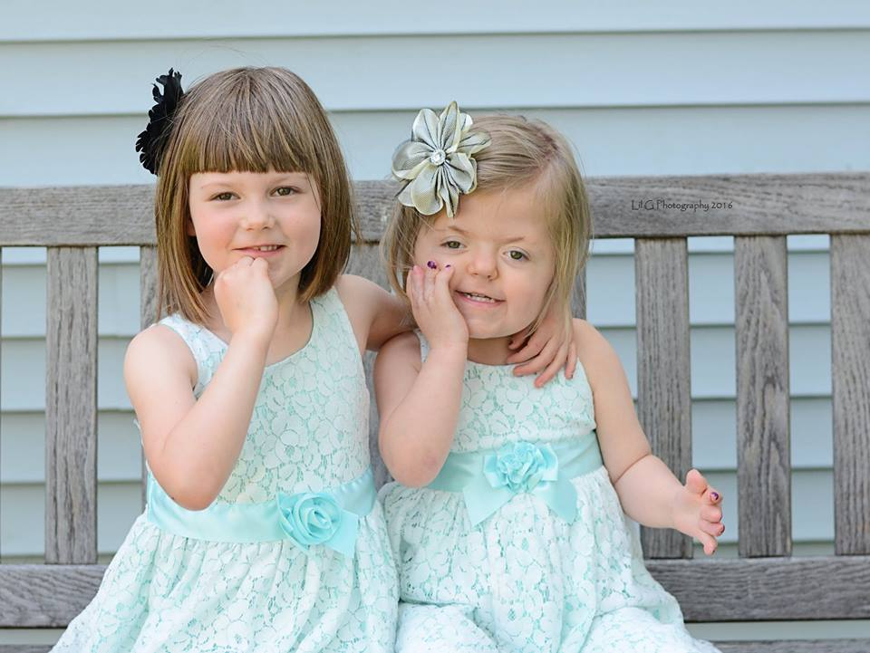 little girls with apert syndrome