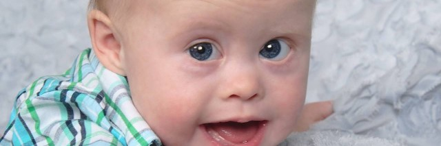 author's baby, who has down syndrome