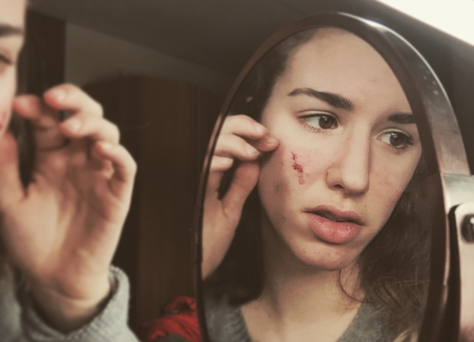 dating a guy with acne scars