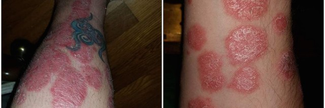 two photos of psoriasis on arm and leg
