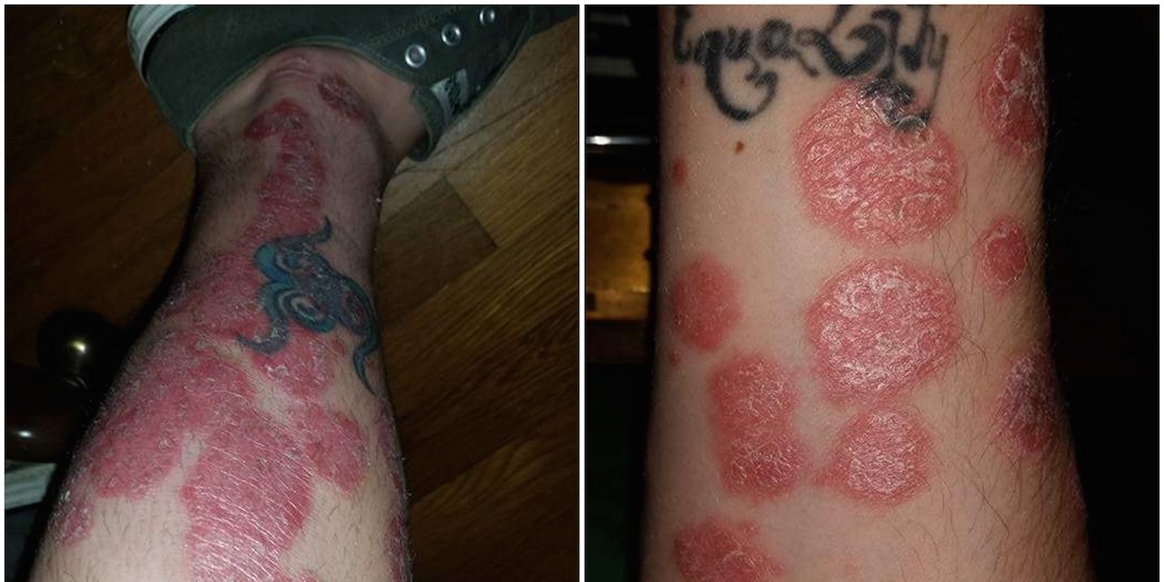My Diagnosis and Treatment for Psoriasis | The Mighty