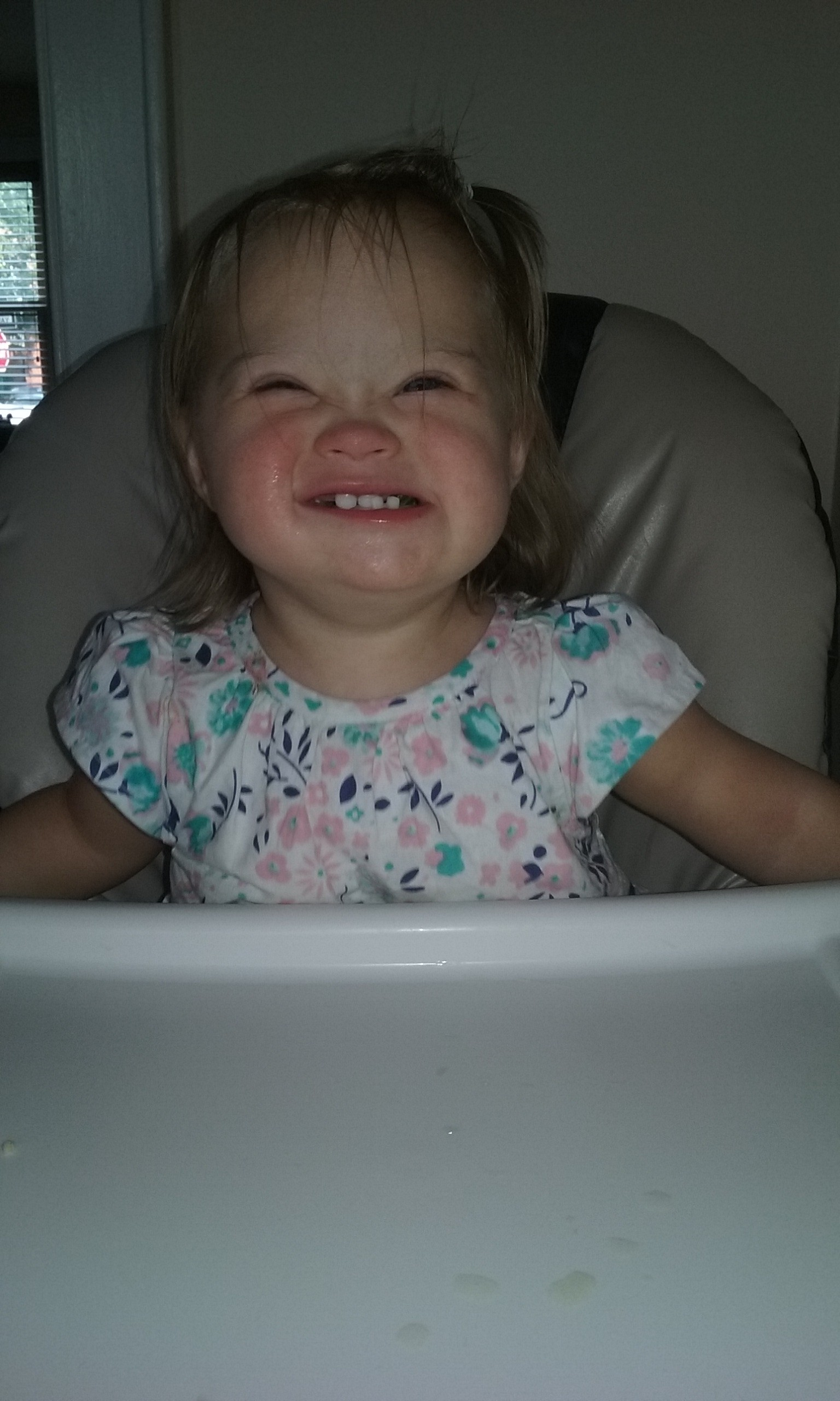 baby with Down syndrome smiling in a high chair