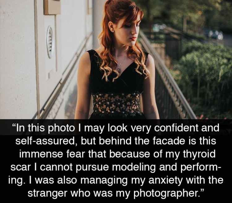 """Red-headed model. """"In this photo I may look very confident and self-assured, but behind the facade is this immense fear that because of my thyroid scar I cannot pursue modeling and performing as I will not be wanted. I'm trying to soak in every moment now and hope that there is a future for my passions. I was also managing my anxiety with the stranger who was my photographer."""""""