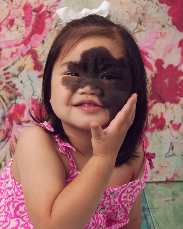 Young girl with a facial difference