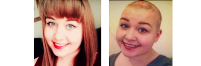 before and after of woman who shaved her head