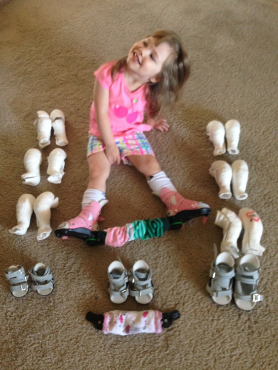 Little girl with bilateral clubfeet surrounded by her old braces and casts.