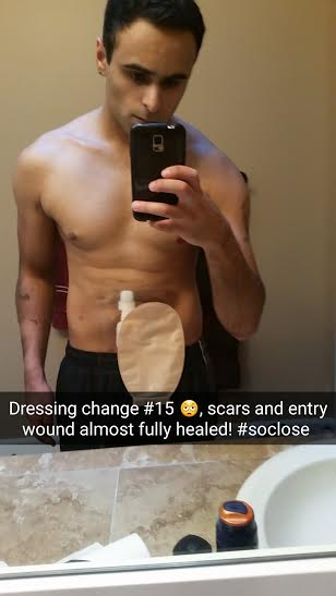 selfie of man showing is ostomy bag