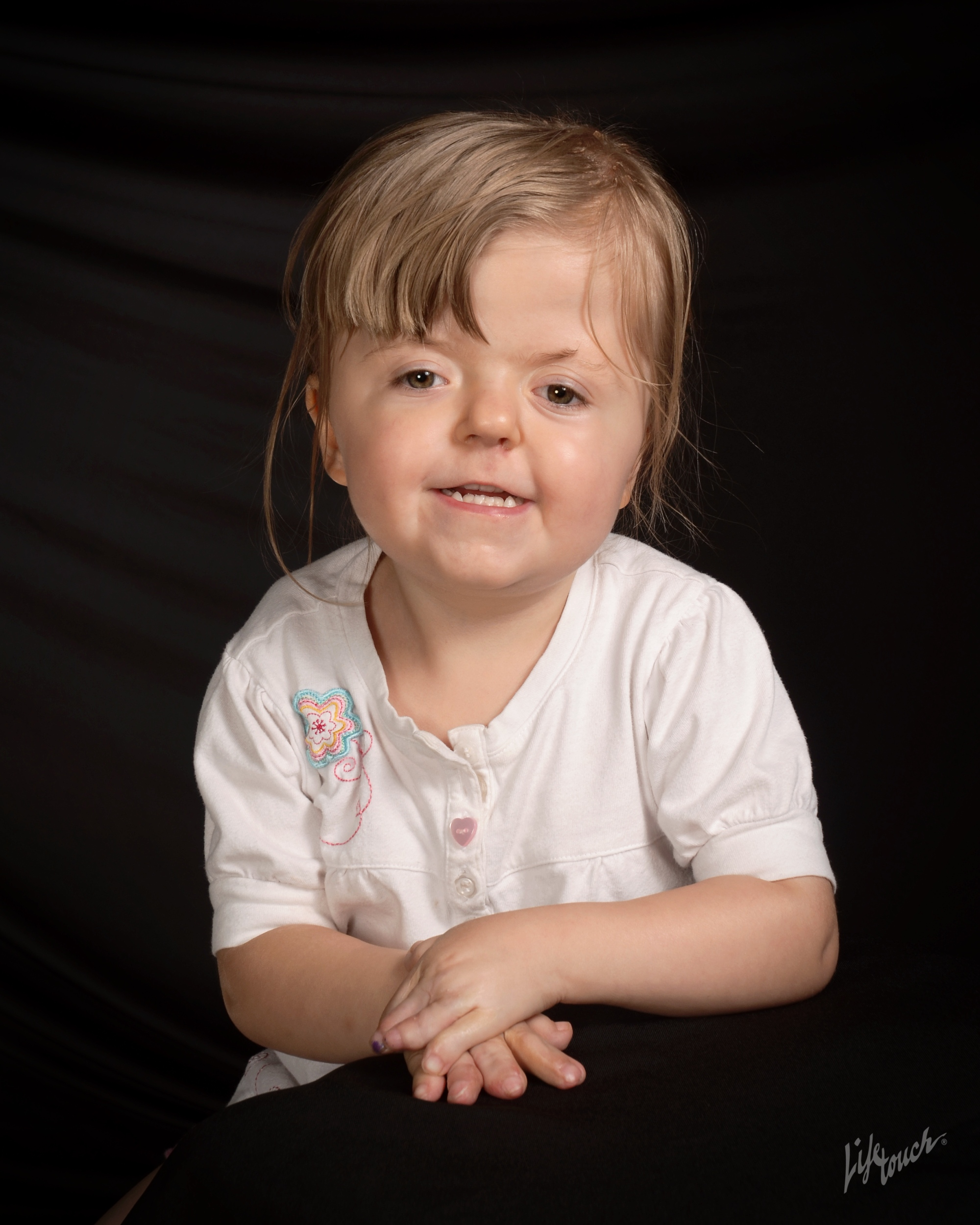little girl with apert syndrome