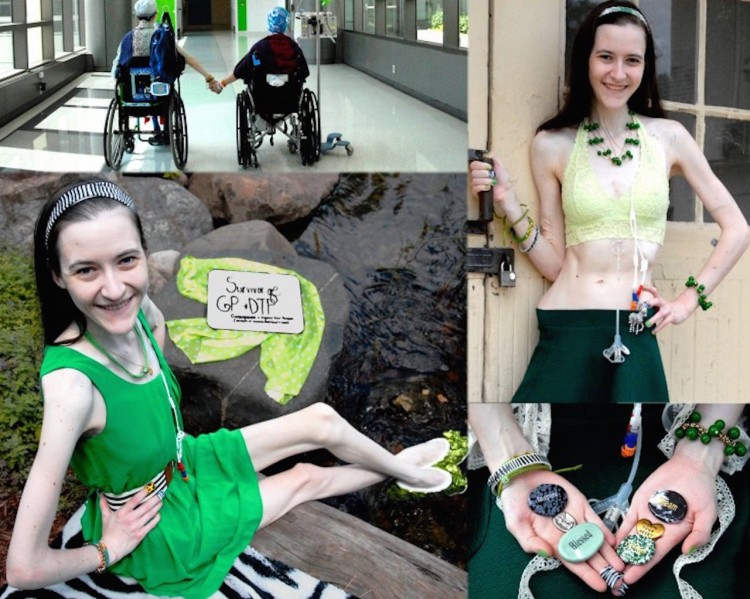 photos of woman with digestive tract paralysis (DTP) in the hospital, standing at a door, sitting and holding pins