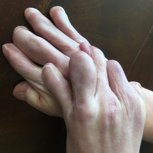 LIsa's sons hands.