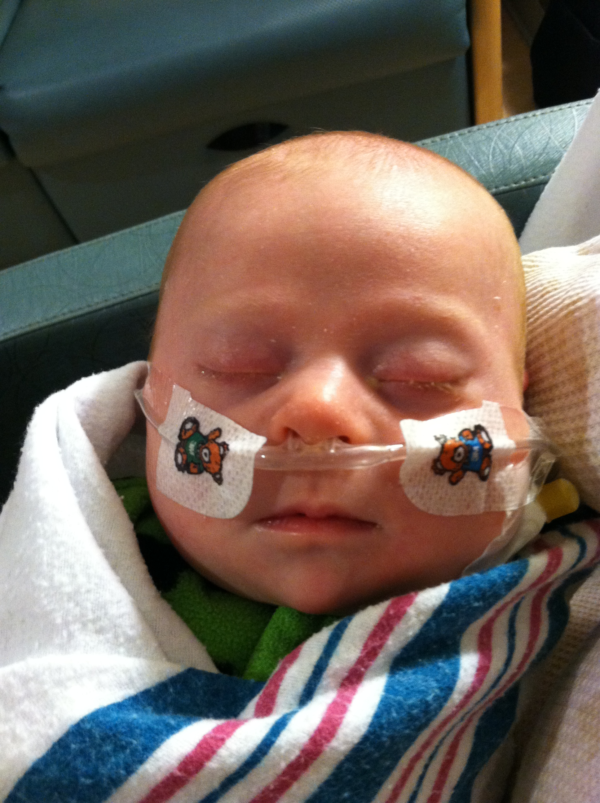 baby with down syndrome with breathing tube in