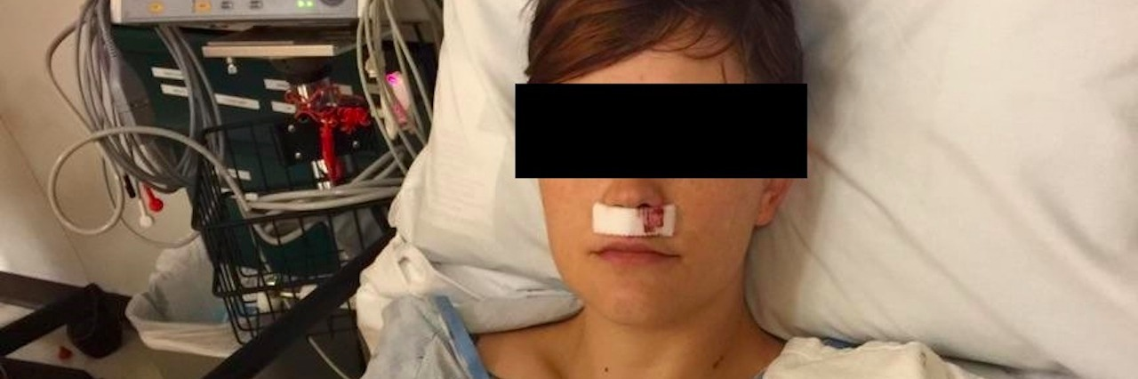 woman after nose surgery