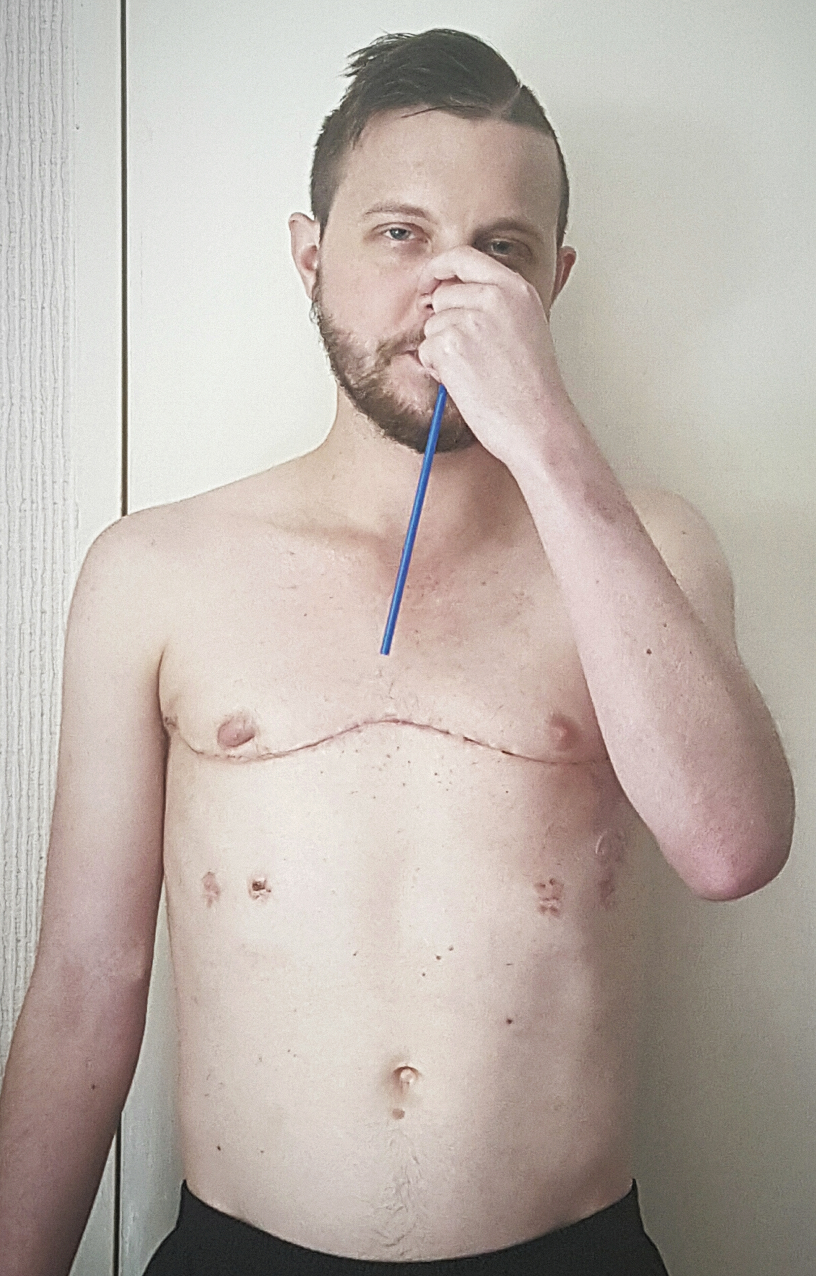 man with cystic fibrosis taking the straw challenge