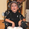 boy with canavan disease