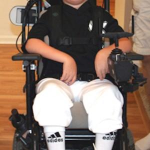 boy with canavan disease