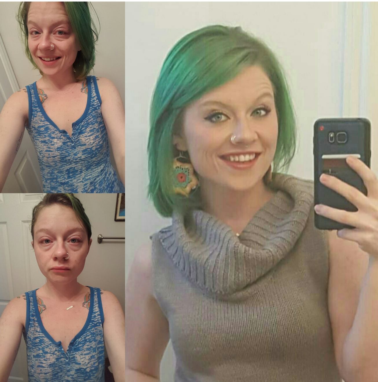 selfies of a woman with crohn's disease with and without makeup