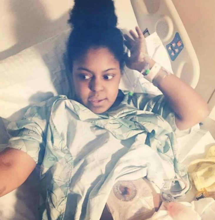woman in a hospital bed with an ostomy