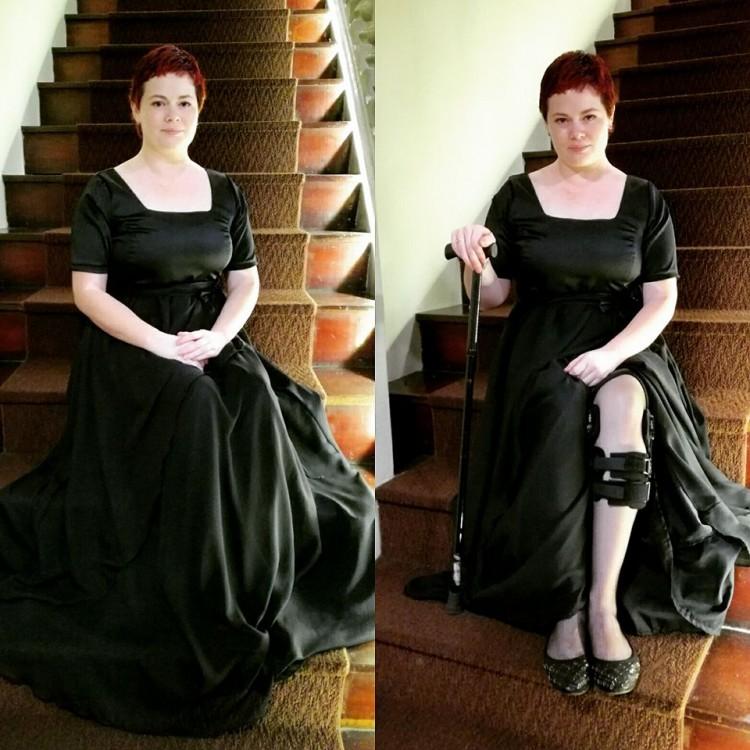 girl wearing black dress showing knee brace