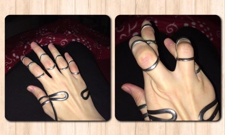 fingers with silver splints