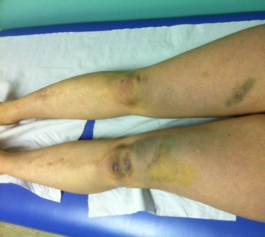 woman's legs with bruises on knees and thigh