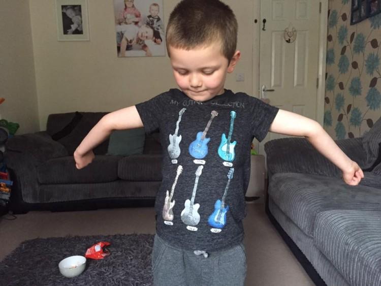 young boy showing hypermobile elbows