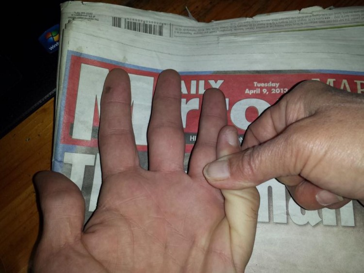 hand on newspaper with pinky bending the wrong way