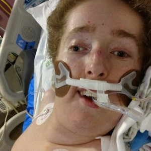 young man on a ventilator in the hospital