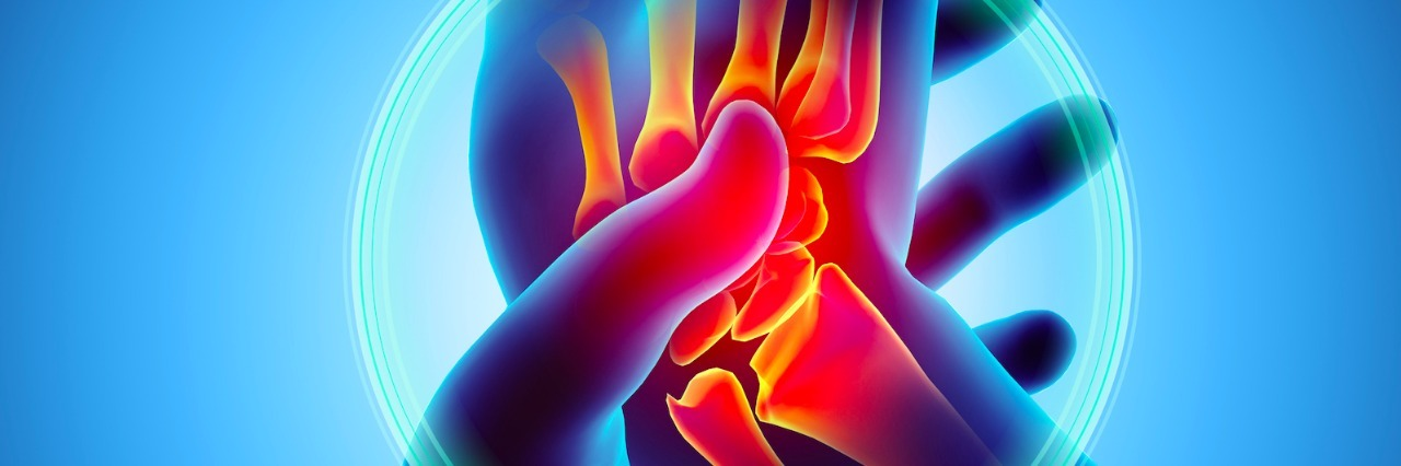 Illustration of carpal tunnel syndrome, someone holding a painful wrist