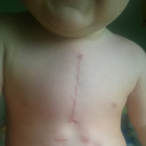 boy with scars after heart surgery