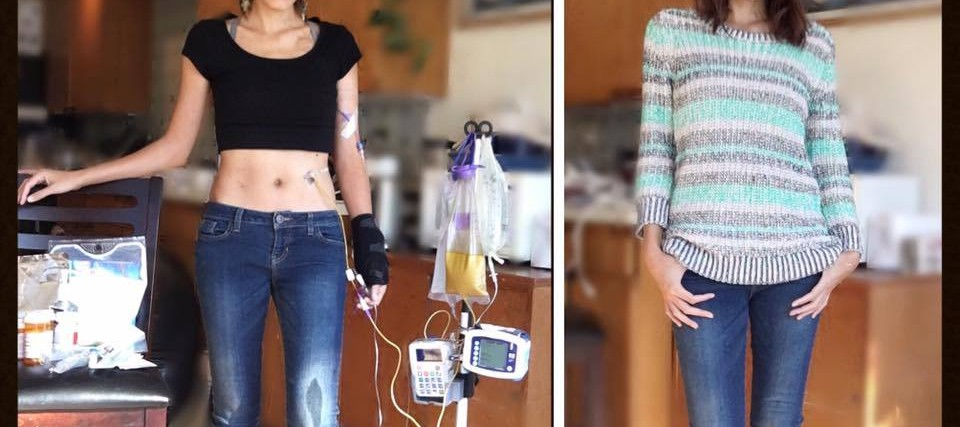side by side photos of woman connected to medical device and photo of her looking healthy