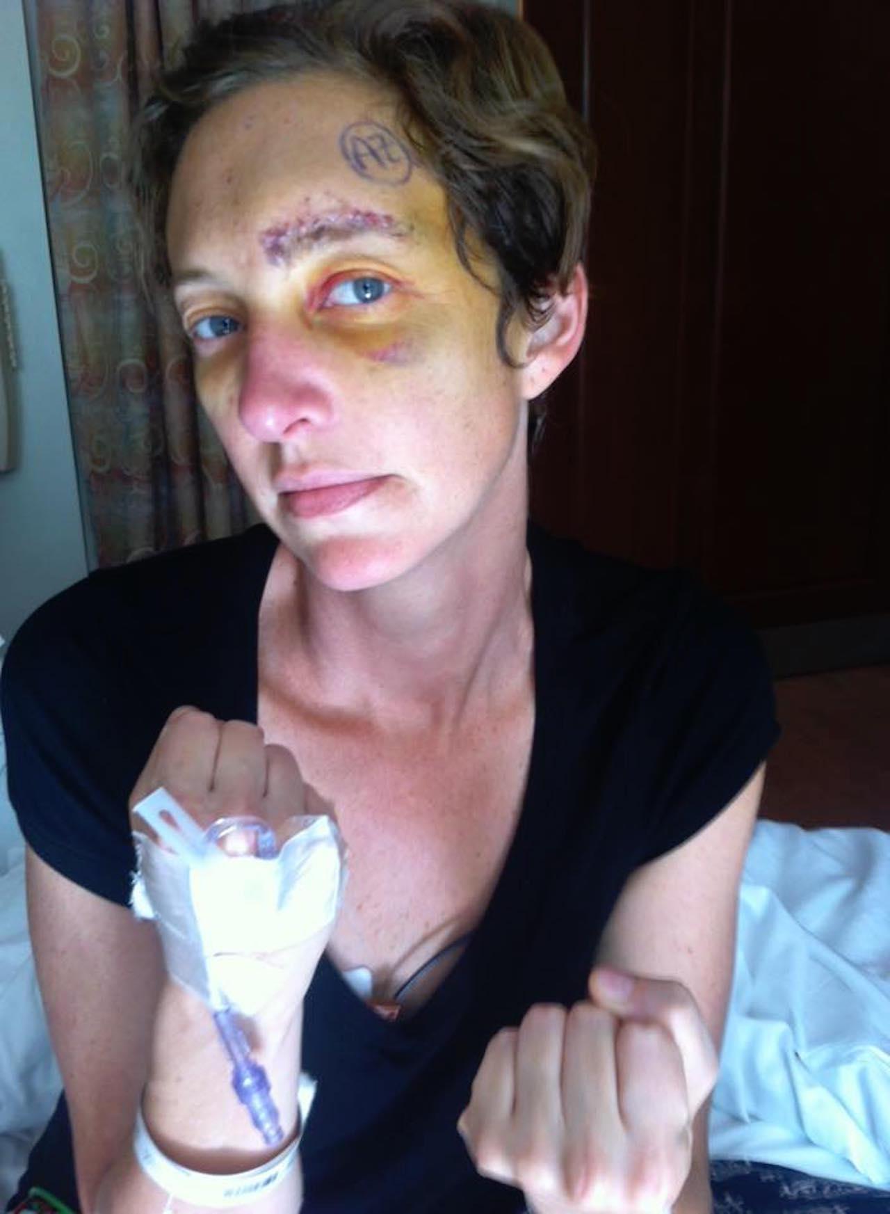 woman post-op craniotamy