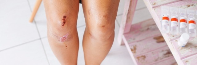 Woman with scraped knees.