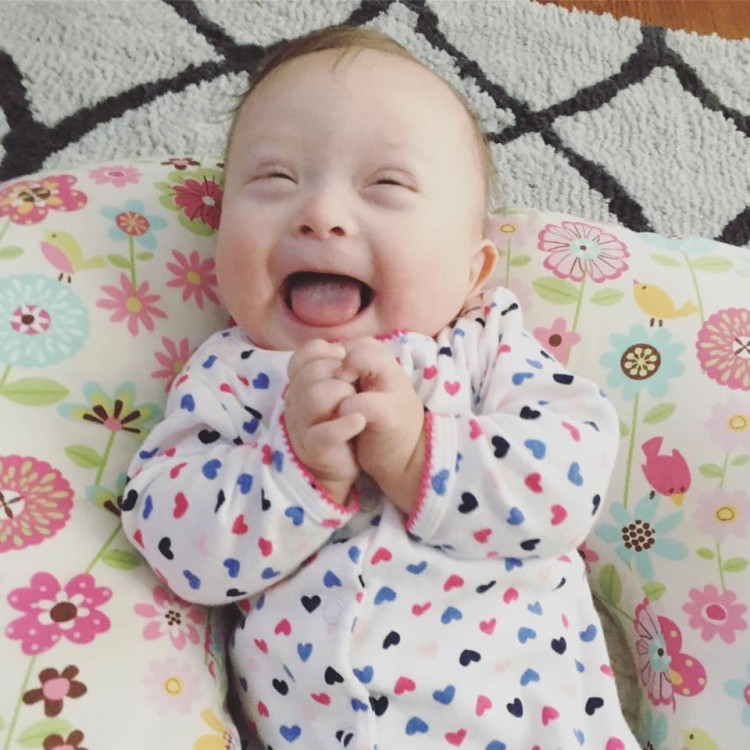 newborn baby with down syndrome
