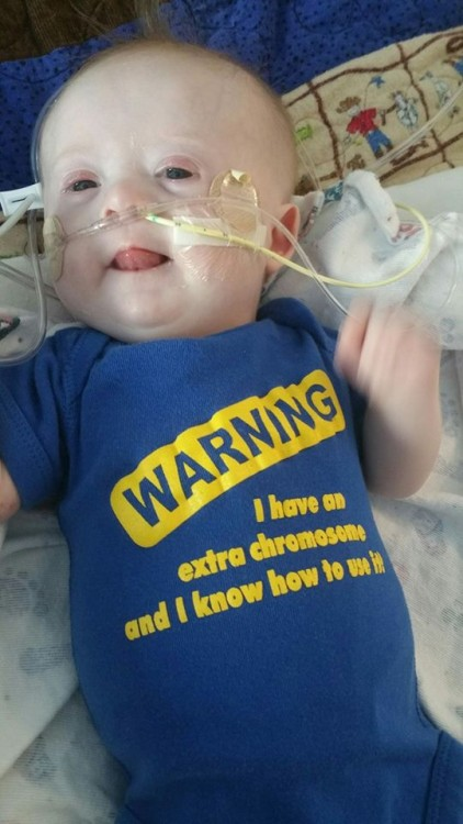 baby with down syndrome wearing shirt that says warning i knonw i have an extra chromosome and i know how to use it
