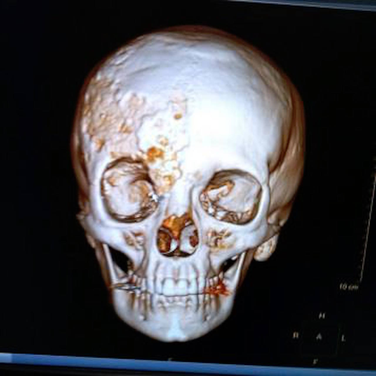skull of a teen with fibrous dysplasia