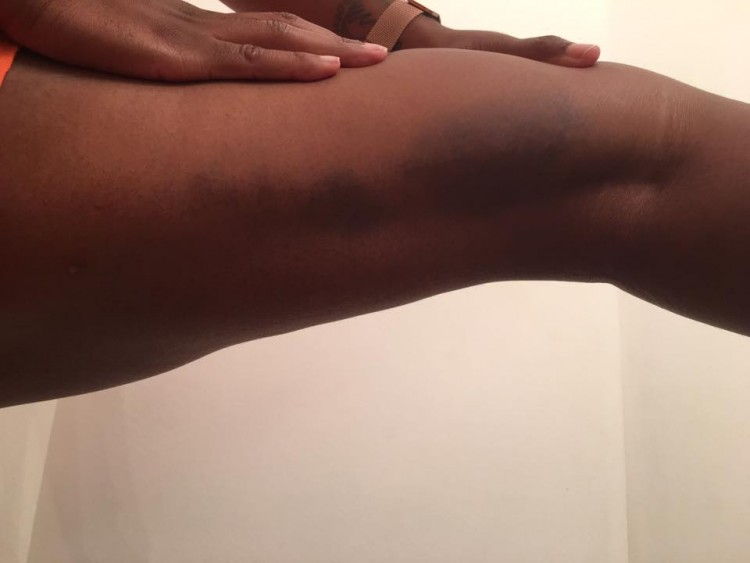 woman's leg with bruises