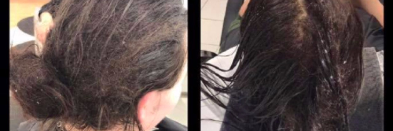 Before photos of woman's matted hair.