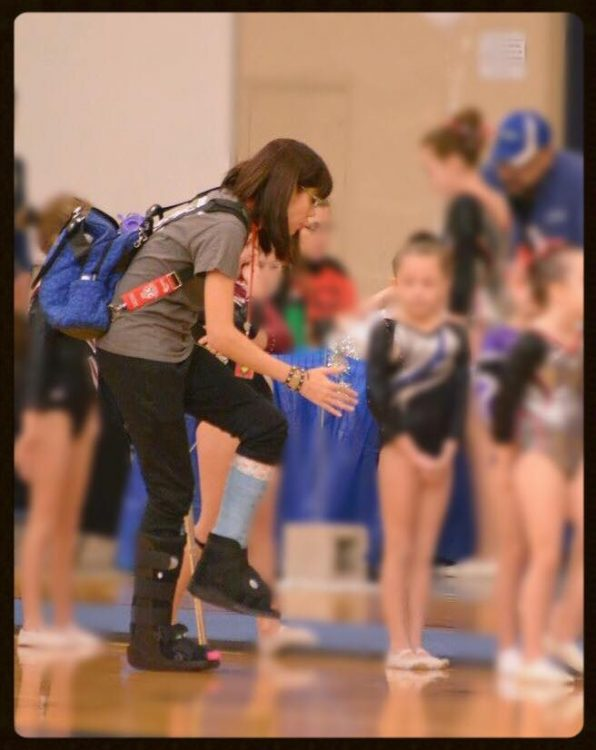 woman wearing backpack and cast on foot coaching gymnastics